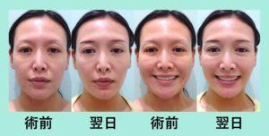 『翌日からスッキリ!痩せ型の方にも好評「小顔組み合わせ治療」』の画像