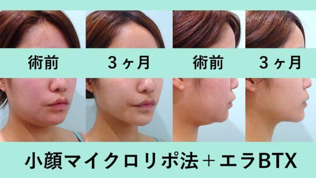 注目の小顔治療参考画像