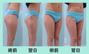 『前半周だけ吸引するとこんな感じです「太もも脂肪吸引」』の画像