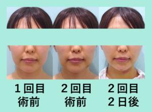 『2回に分けた「小顔組み合わせ治療」』の画像