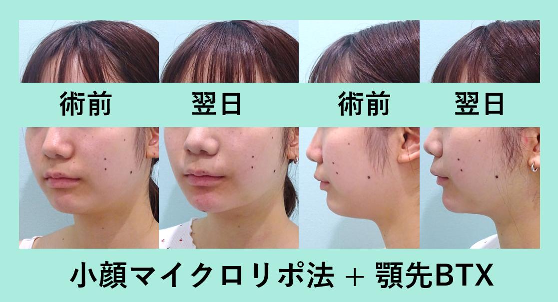 小顔 脂肪吸引 顎先ボトックス ダウンタイム