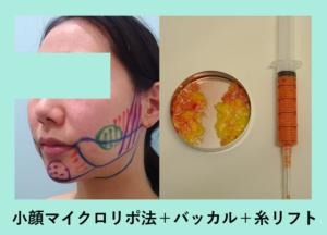 『逆さ卵型のスッキリ小顔に「小顔組み合わせ治療」』の画像