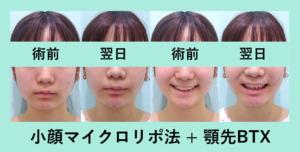 『正面と笑顔はそこまで変わらない「小顔マイクロリポ法」』の画像