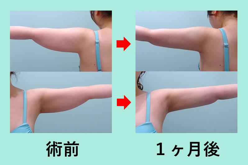 二の腕 ベイザー脂肪吸引 ダウンタイム
