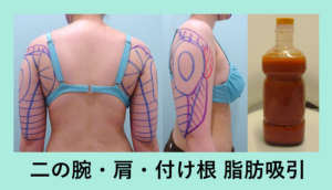 『1L越え!今年最高記録!「二の腕・肩・付け根の脂肪吸引」』の画像