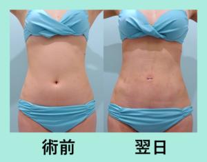 『内出血なし!究極にダウンタイムの短い「腹部の脂肪吸引」』の画像