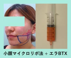 『内出血なし!翌日から速攻で小顔に!「小顔マイクロリポ法」』の画像