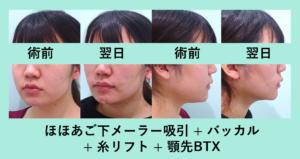 『最小ダウンタイムでフルセットを「小顔食み合わせ治療」』の画像
