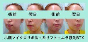 『最小ダウンタイムで翌日から超シャープ!!「小顔組み合わせ治療」』の画像