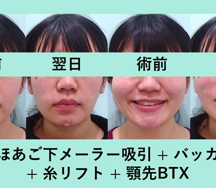 小顔治療の症例参考画像