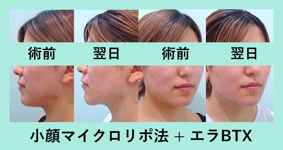 小顔 脂肪吸引 エラボトックス ダウンタイム