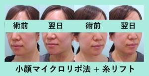 『「たるみ」と「もたつき」ダブルで治療!「小顔組み合わせ治療」』の画像