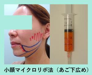 『お洒落に吸引「小顔マイクロリポ法」』の画像