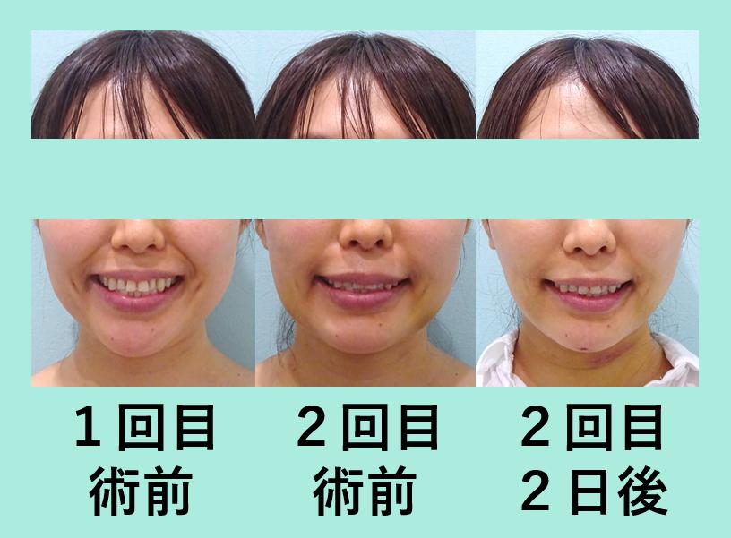 小顔 脂肪吸引 バッカルファット メーラーファット 糸リフト 顎先ボトックス ダウンタイム