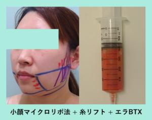 『翌日の変化が劇的!「小顔組み合わせ治療」』の画像