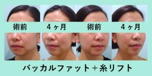 『顔の重心を変える「小顔組み合わせ治療」』の画像