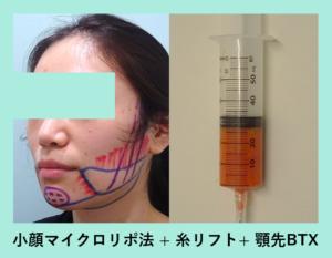 『顎先ボトックスがすごい!!「小顔組み合わせ治療」』の画像