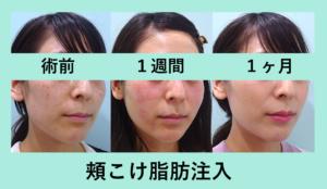 『頬こけ治療には脂肪注入がお勧めです☆』の画像