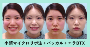 『完成!顔小さくなりました☆「小顔組み合わせ治療」』の画像