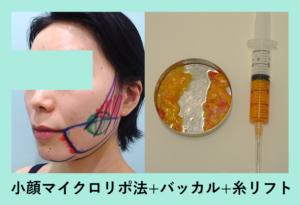 『たるみも改善できちゃう「小顔組み合わせ治療」』の画像