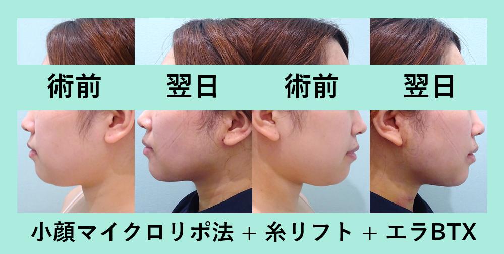 小顔 脂肪吸引 糸リフト ダウンタイム