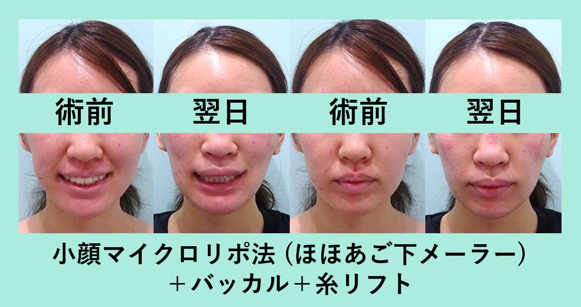小顔 脂肪吸引 バッカルファット メーラーファット 糸リフト ダウンタイム