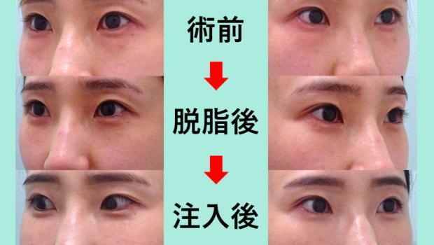 注目のクマ治療参考画像