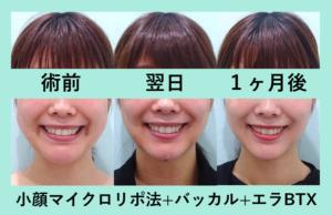 『スッキリ美人に「小顔組み合わせ治療」』の画像