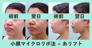 『たるみともたつきの同時治療「小顔組み合わせ治療」』の画像