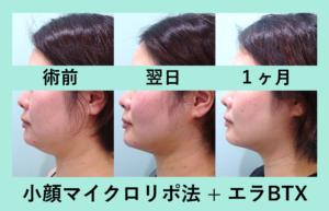 『横顔別人!「小顔マイクロリポ法」』の画像