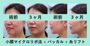 『ついに完成!素晴らしい変化です!「小顔組み合わせ治療」』の画像