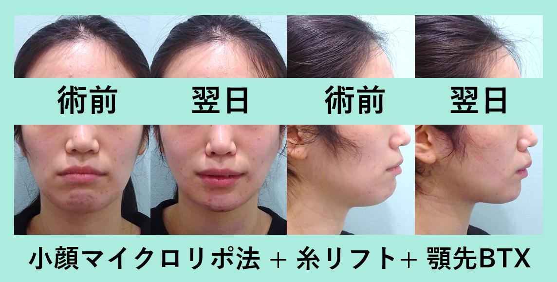 顔 脂肪吸引 糸リフト 顎先ボトックス ダウンタイム