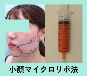 『がっつり吸引「小顔マイクロリポ法」』の画像