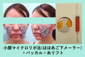 『腫れの少なさに絶対的自信「小顔組み合わせ治療」』の画像
