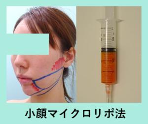 『完璧なフェイスラインに「小顔マイクロリポ法」』の画像