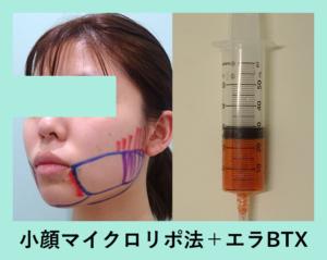 『3-6ヶ月後に仕上がる「小顔マイクロリポ法」』の画像