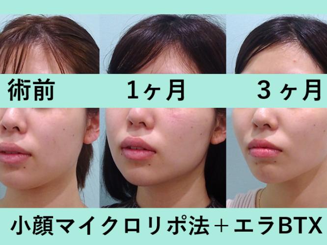 小顔 脂肪吸引 エラボトックス ビフォーアフター