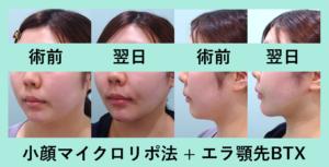 『翌日から変化が分かる「小顔マイクロリポ法」』の画像