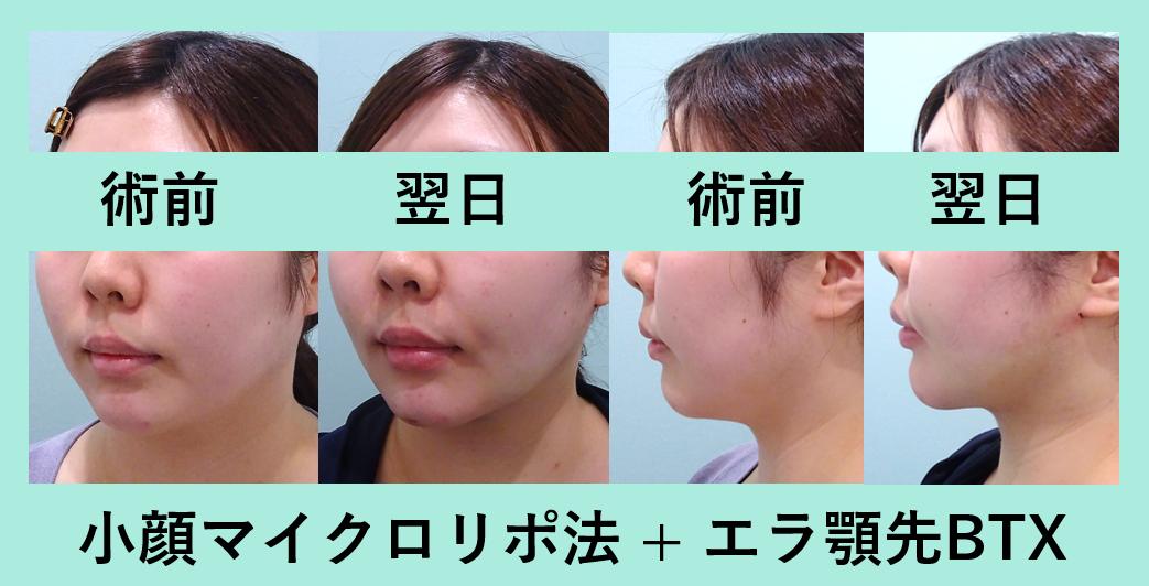 小顔 脂肪吸引 エラボトックス 顎先ボトックス ダウンタイム