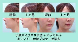 『不自然な顎プロテーゼを抜去「小顔組み合わせ治療」』の画像