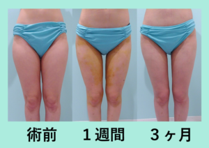 『滑らかで綺麗な仕上がり「太もも全周の脂肪吸引」』の画像