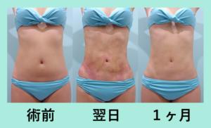 『芸術的なウエストに「腹部・腰の脂肪吸引」』の画像