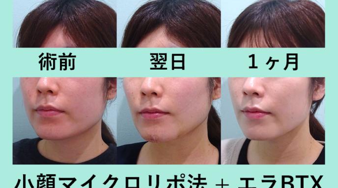 顔 脂肪吸引 エラボトックス ダウンタイム