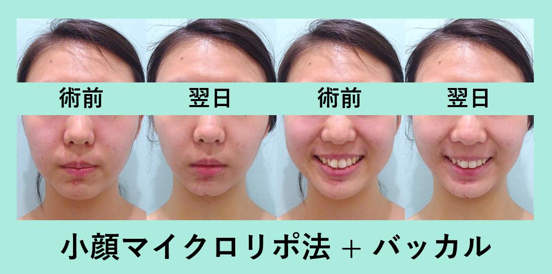 小顔 脂肪吸引 バッカルファット ダウンタイム