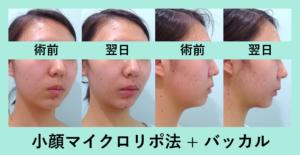 『最小ダウンタイム、頬こけなし!「小顔組み合わせ治療」』の画像