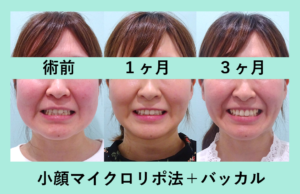 『結果がしっかりと出る!「小顔組み合わせ治療」』の画像