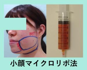 『ガッツリ吸引しても内出血なし!「小顔マイクロリポ法」』の画像