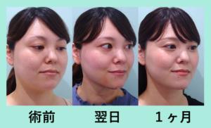 『患者さんも一緒に頑張る!「小顔マイクロリポ法」』の画像