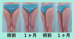 『たるみを悪化させない「太ももの脂肪吸引」』の画像