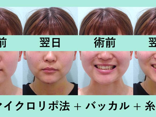 小顔 脂肪吸引 バッカルファット 糸リフト エラボトックス ダウンタイム